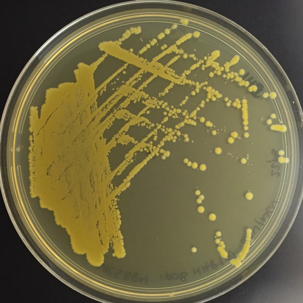 Staphylococcus on an agar plate. Credit Dr Jean Lee