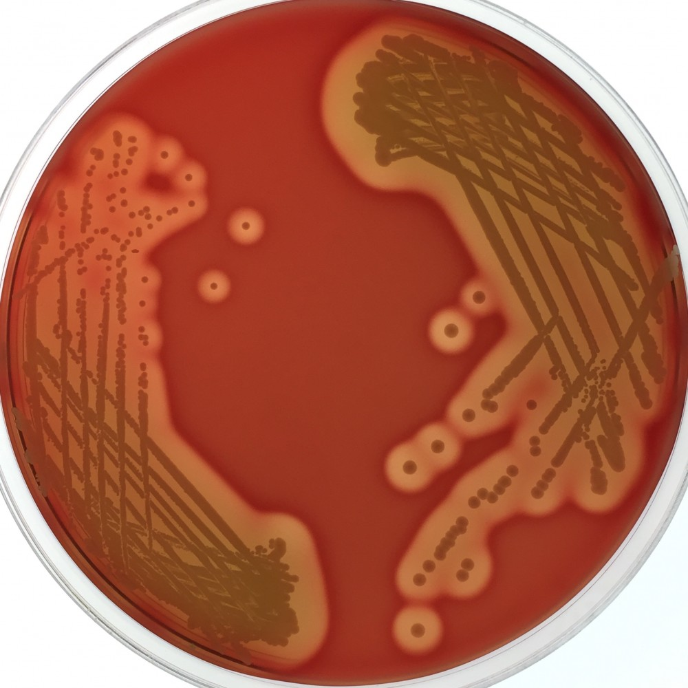 Staphylococcus epidermis on a blood agar plate. Credit Dr Jean Lee.