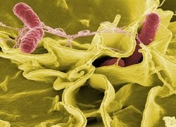 AMR and healthcare associated infections – what role can the Doherty Institute Play?