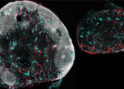 Systemic immune responses can hamper local infection immune responses