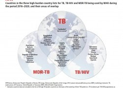 Genetics sheds light on the spread of tuberculosis bacteria