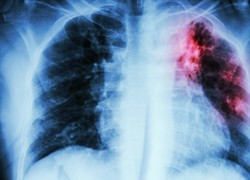Real-time, web-based tool to revolutionise drug-resistant TB treatment
