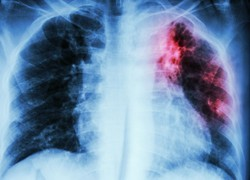 Explainer: what is TB and am I at risk of getting it in Australia