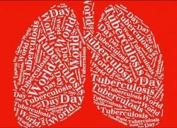 World Tuberculosis Day Seminar 2016