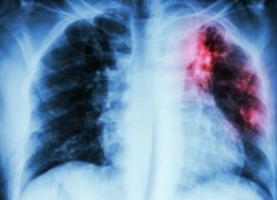Tuberculosis – Still a Major Killer