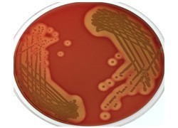 Community-acquired golden staph infections on the rise